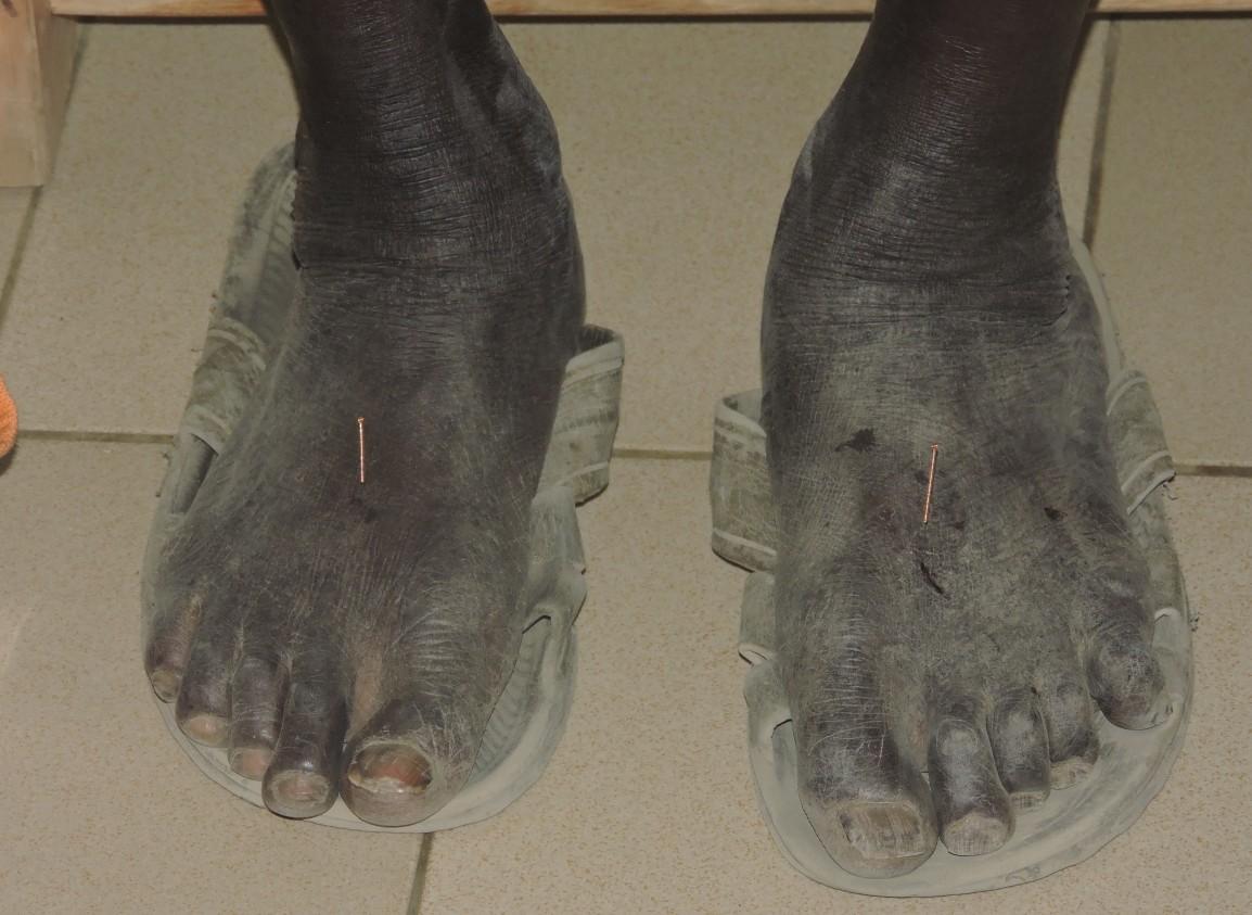 Ling Tao Acupuntorexs descalzxs en Senegal