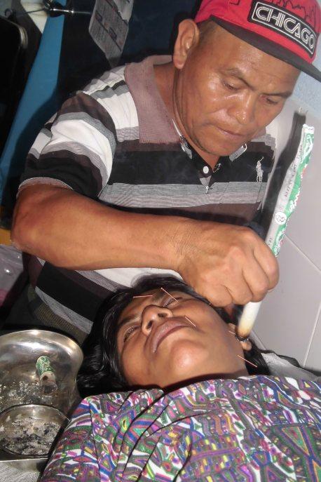 Miguel Sanchez, sacerdote maya y promotor de salud, participante en nuestras capacitaciones de acupuntura desde 2014, realizando un tratamiento a una persona de la comunidad, siendo tutelado por nuestrxs docentes